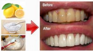 WANT TO HAVE WHITER TEETHES
